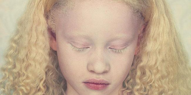 Приблизно 1 з 70 людей є носієм гена альбінізму