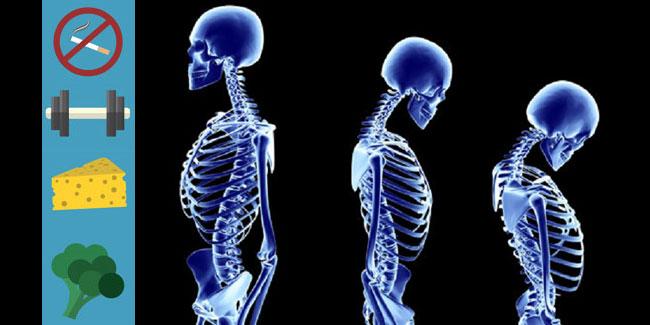 Всесвітній день профілактики остеопорозу